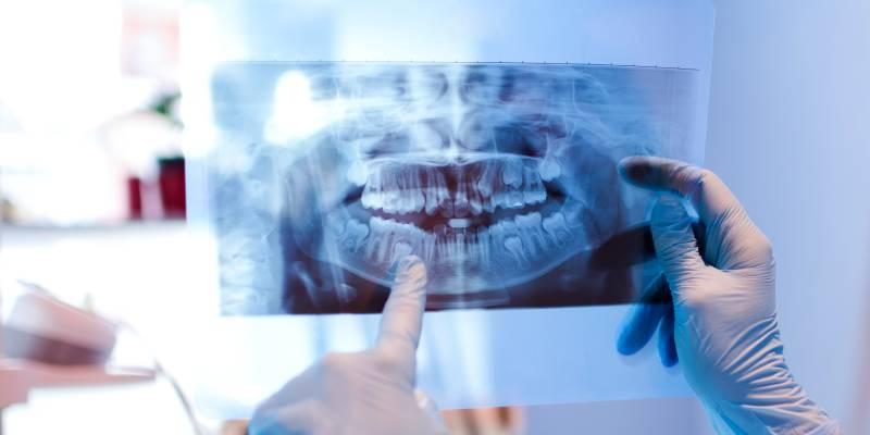 intervento-chirurgia-orale-siniscola-studio-odontoiatrico-murru